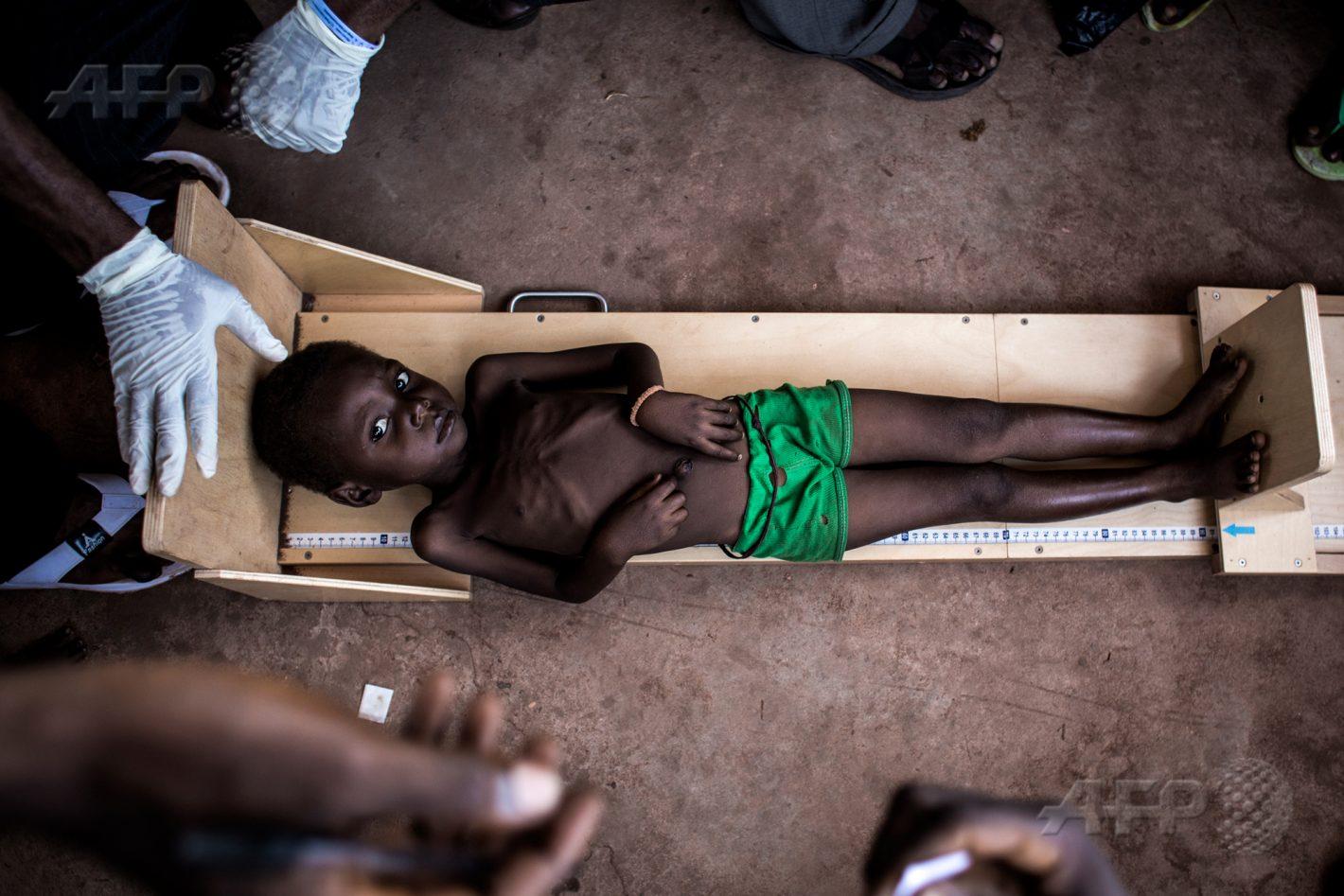 26 octobre 2017 – Tshikapa, République Démocratique du Congo - Un enfant souffrant de malnutrition est mesuré dans une clinique traitant des cas de malnutrition sévère, dans la région du Kasaï, dans le centre du pays. Les conflits dans les provinces du Kasaï entre la milice locale, les Kamwina Nsapu, et les forces gouvernementales ont déplacé plus de 1,4 million de personnes depuis août 2016. AFP / JOHN WESSELS